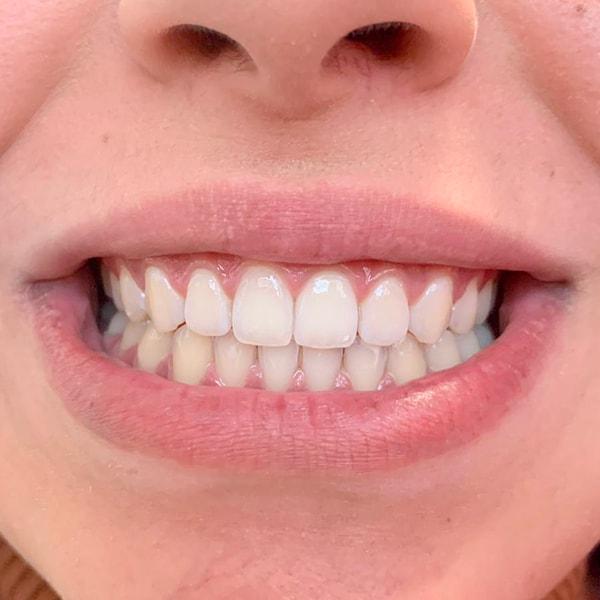 Kosmetische Zahnaufhellung Nachher