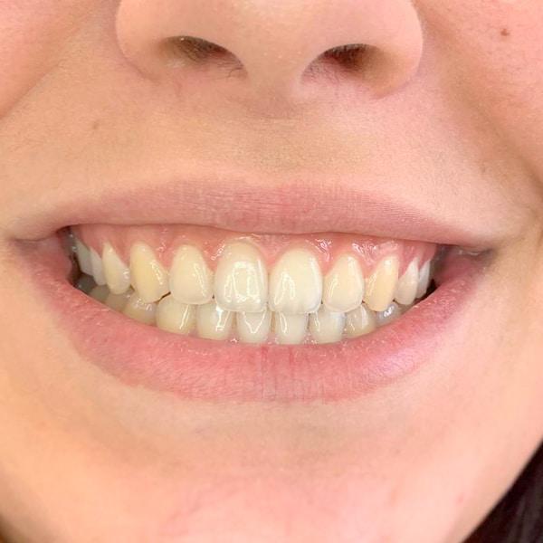 Kosmetische Zahnaufhellung Vorher